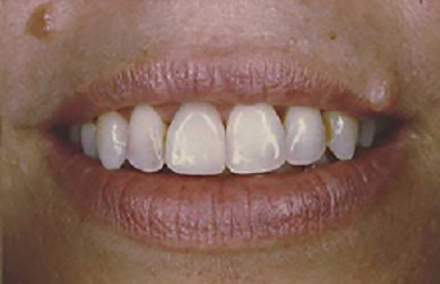Beautiful woman's smile with Empress veneers