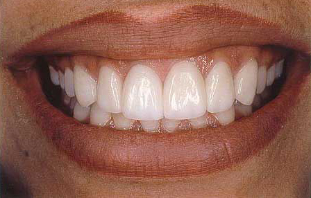 Worn teeth repaired with Empress veneer-crowns