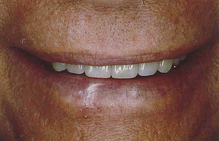 Man's smile after porcelain veneer enhancement