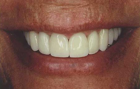 Transformed smile flawlessly crafted with veneers and crowns