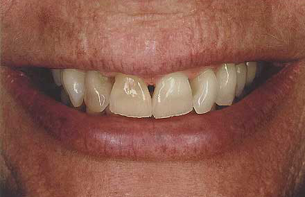 Smile with receding gums revealing tooth roots