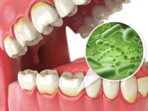 Illustration of bacteria under the gumline
