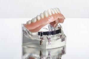 model of dental implants