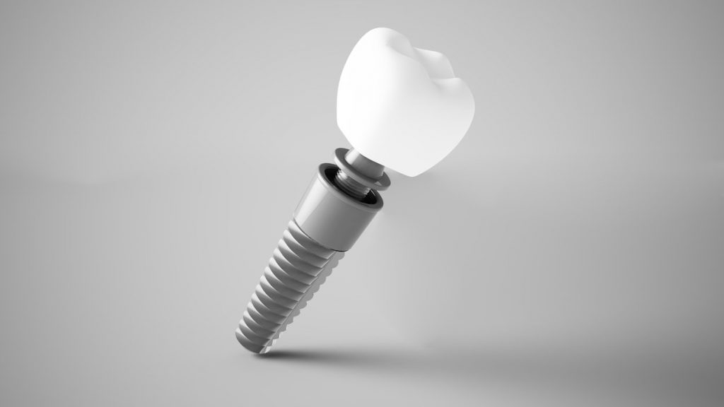 Dental implants look like the model in this picture.